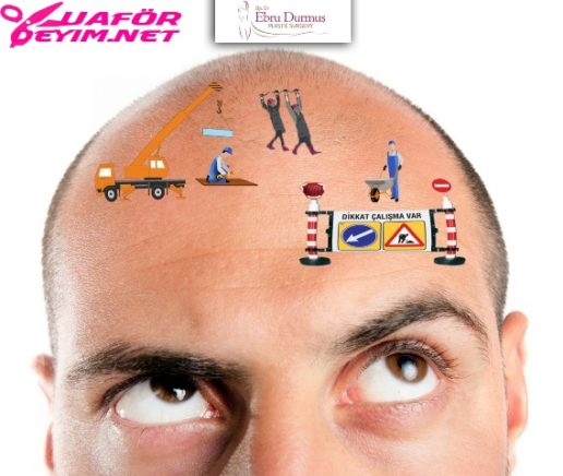 Fue Yöntemi ile Saç Ekimi Hakkında Merak Ettikleriniz - Op. Dr. Ebru Durmuş