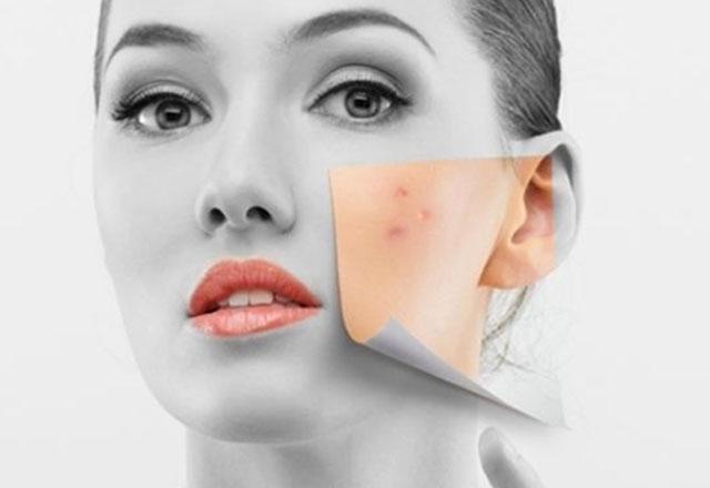Farmasi Aydınlatıcı Krem ve Sabun İle Cilt Lekelerine Elveda