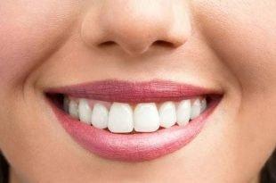 Daha Beyaz Dişler Pratik Bilgiler